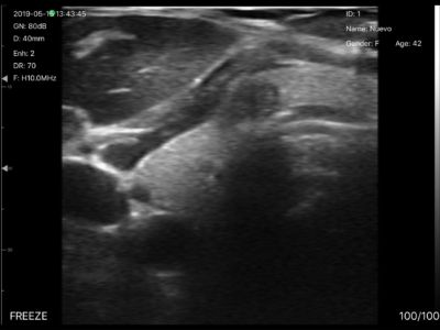 Left Thyroid Nodule